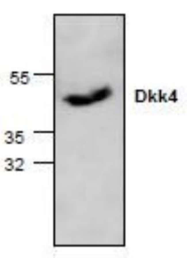 anti-Dkk-4, Polyclonal, Novus Biologicals 0.1mg; Unlabeled:Life Sciences