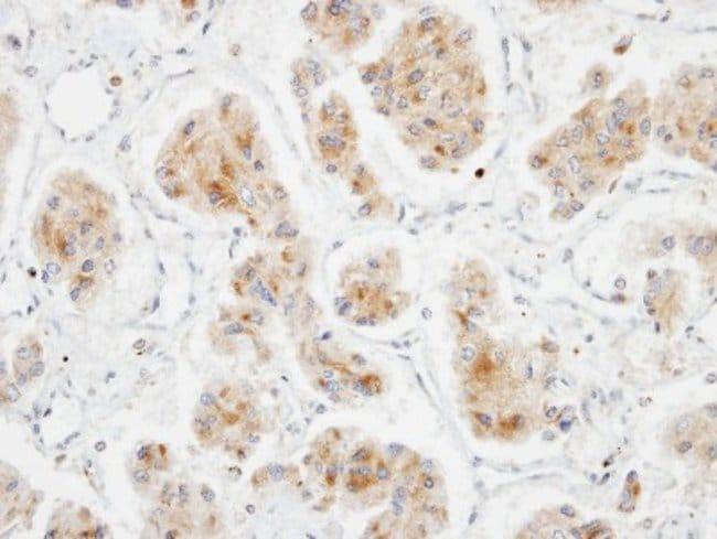anti-DLC1, Polyclonal, Novus Biologicals 0.1mL; Unlabeled:Antibodies