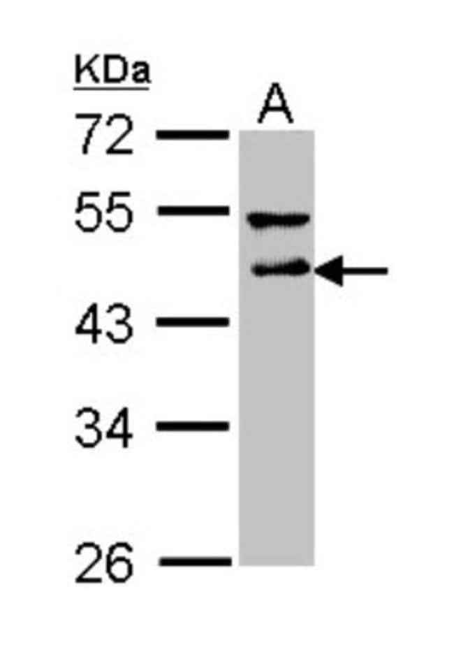 anti-DLST, Polyclonal, Novus Biologicals 0.1mL; Unlabeled:Antibodies