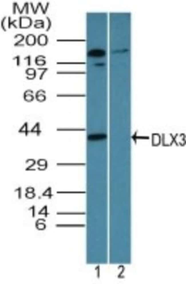 anti-DLX3, Polyclonal, Novus Biologicals:Antibodies:Primary Antibodies