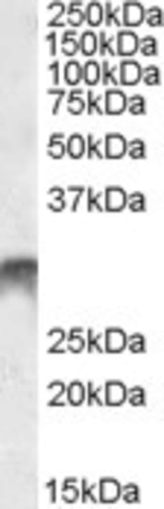 anti-DLX5, Polyclonal, Novus Biologicals 0.1mg; Unlabeled:Antibodies