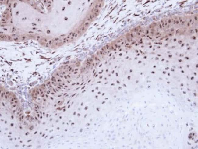 anti-DMC1, Polyclonal, Novus Biologicals 0.1mL; Unlabeled:Life Sciences