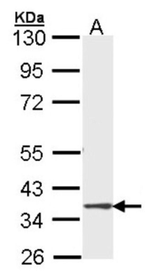 anti-DMC1, Polyclonal, Novus Biologicals 0.1mL; Unlabeled:Antibodies