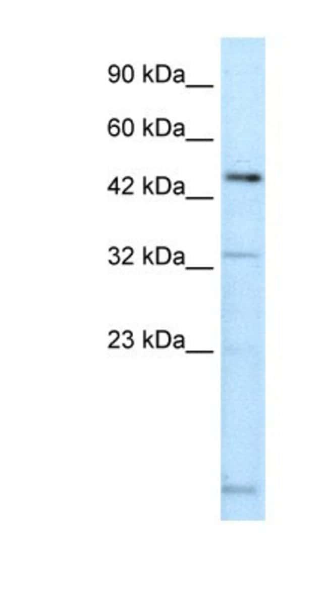 DMRTA2 Rabbit anti-Human, Polyclonal, Novus Biologicals 100µL; Unlabeled:Life