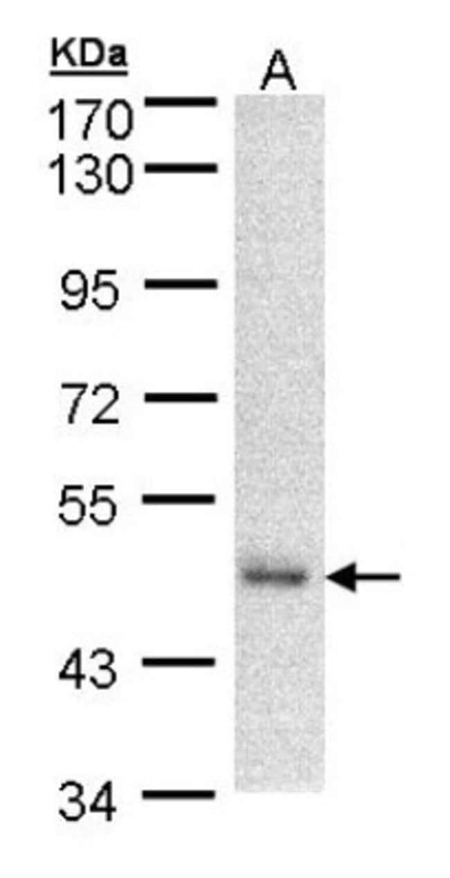 anti-DNAJA2, Polyclonal, Novus Biologicals 0.1mL; Unlabeled:Life Sciences