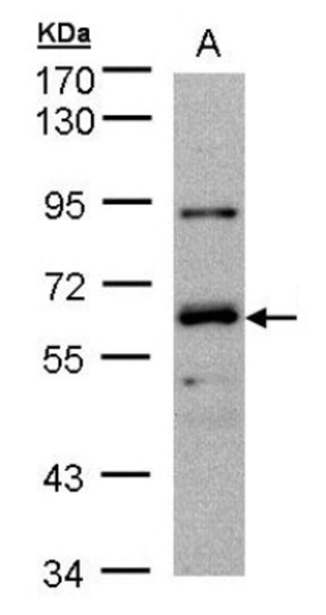 anti-DNAJC1, Polyclonal, Novus Biologicals 0.1mg; Unlabeled:Life Sciences