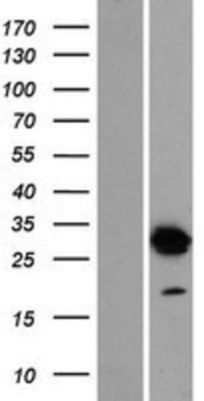 Novus Biologicals DNALI1 Overexpression Lysate (Native) 0.1mg:Life Sciences