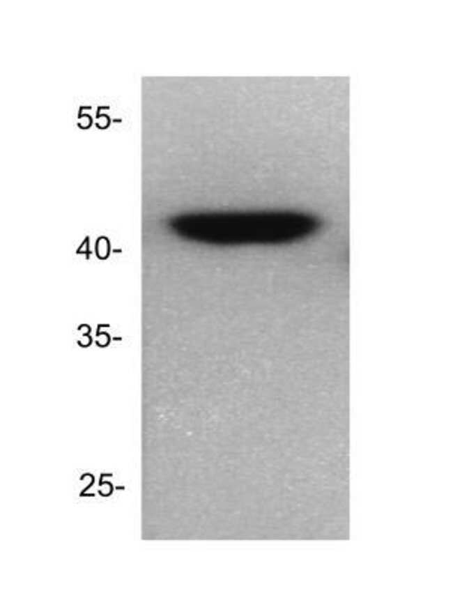 anti-Dnmt2, Polyclonal, Novus Biologicals:Antibodies:Primary Antibodies