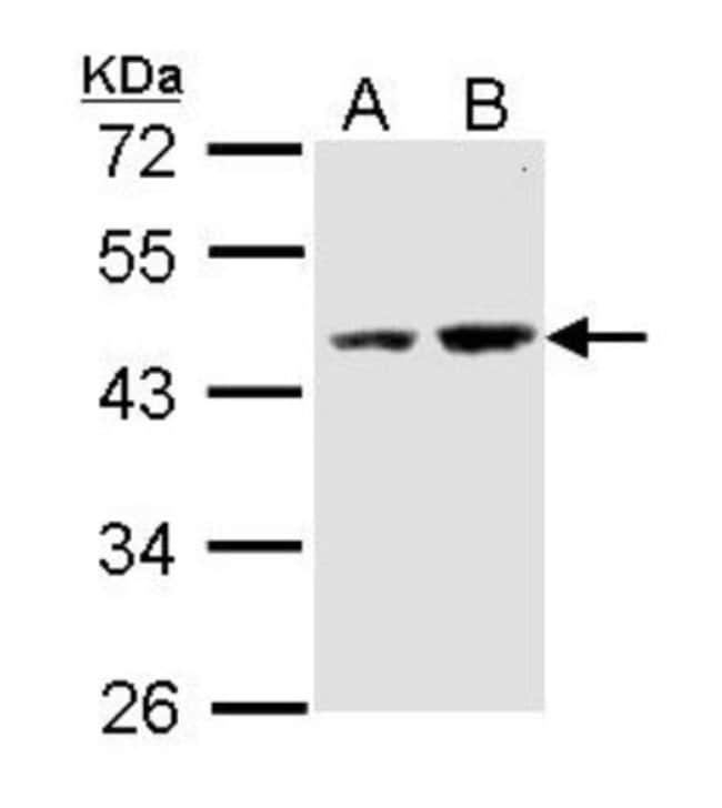 DXO Rabbit anti-Human, Polyclonal, Novus Biologicals 0.1mg; Unlabeled:Life