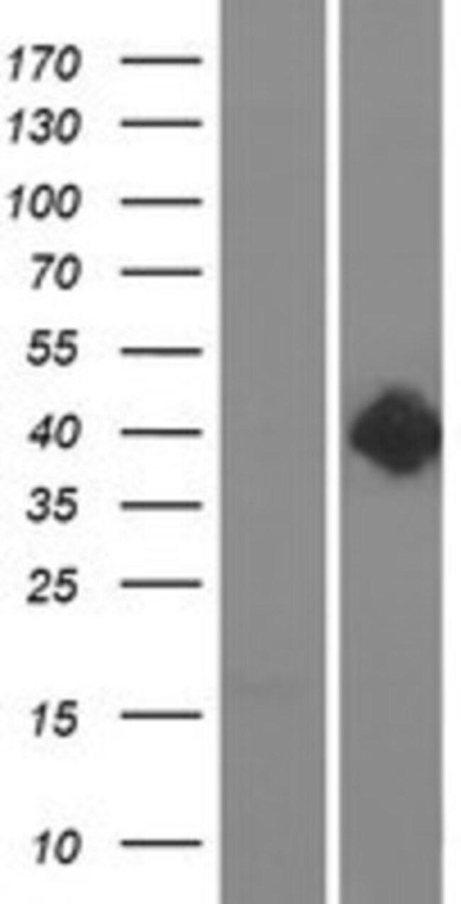 Novus BiologicalsDopamine D2R/DRD2 Overexpression Lysate 0.1mg:Protein