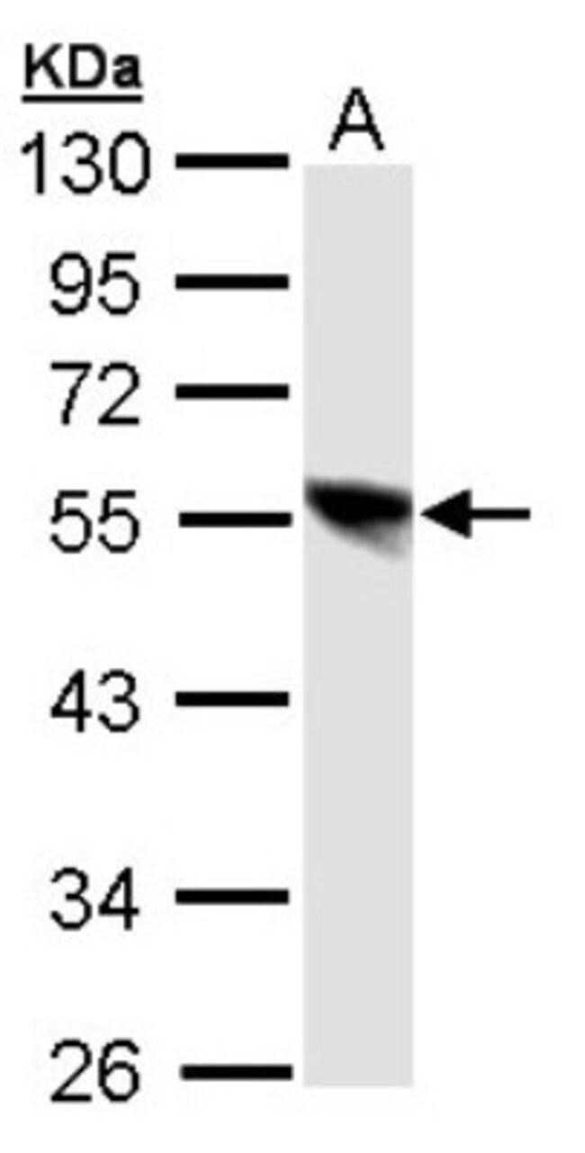 anti-DP1, Polyclonal, Novus Biologicals 0.1mL; Unlabeled:Life Sciences