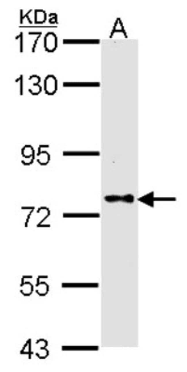anti-DPP8, Polyclonal, Novus Biologicals 0.1mg; Unlabeled:Life Sciences
