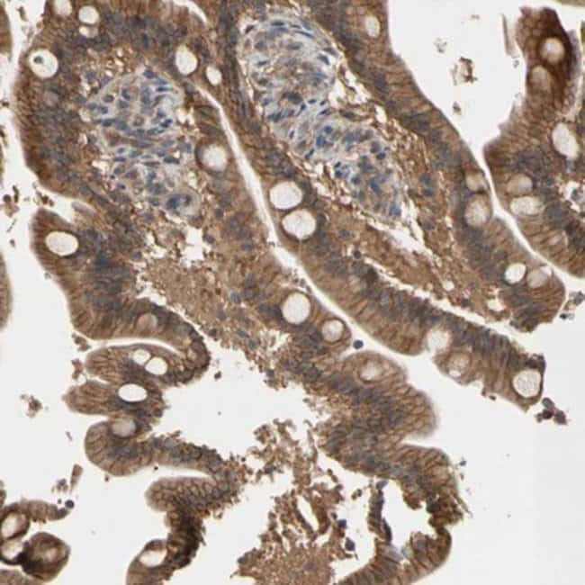 anti-DPP8, Polyclonal, Novus Biologicals 0.1mL; Unlabeled:Life Sciences