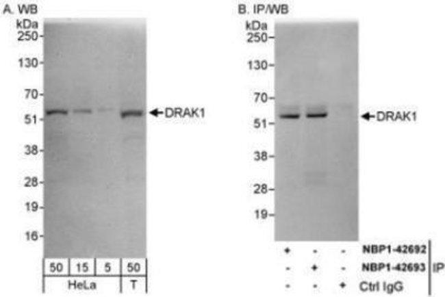 anti-DRAK1, Polyclonal, Novus Biologicals 0.1mL; Unlabeled:Life Sciences
