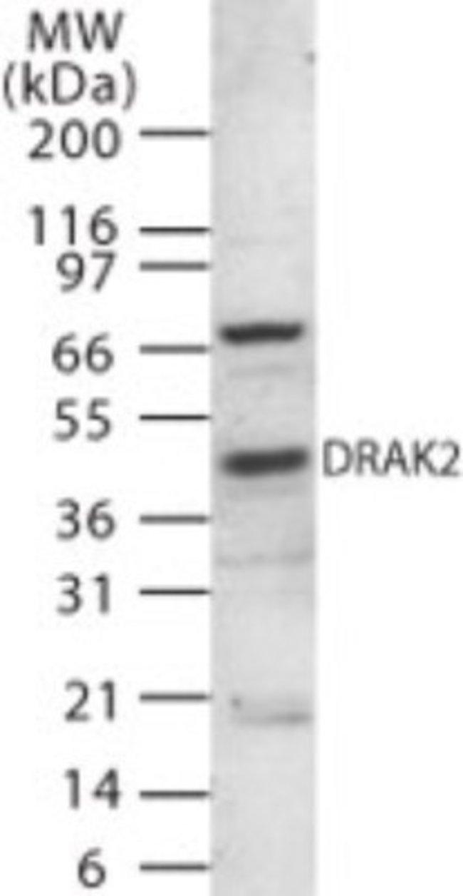 anti-DRAK2, Polyclonal, Novus Biologicals:Antibodies:Primary Antibodies