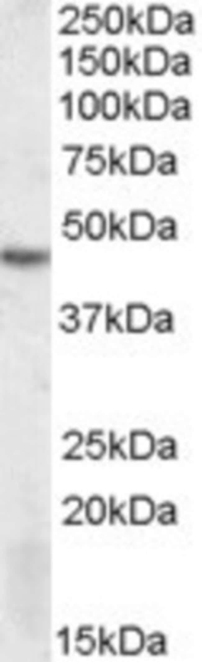 anti-DRAK2, Polyclonal, Novus Biologicals 0.1mg; Unlabeled:Life Sciences