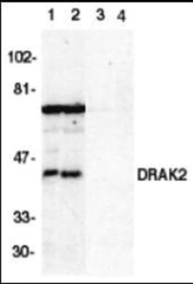 Novus Biologicals DRAK2 Peptide 0.25mg:Life Sciences