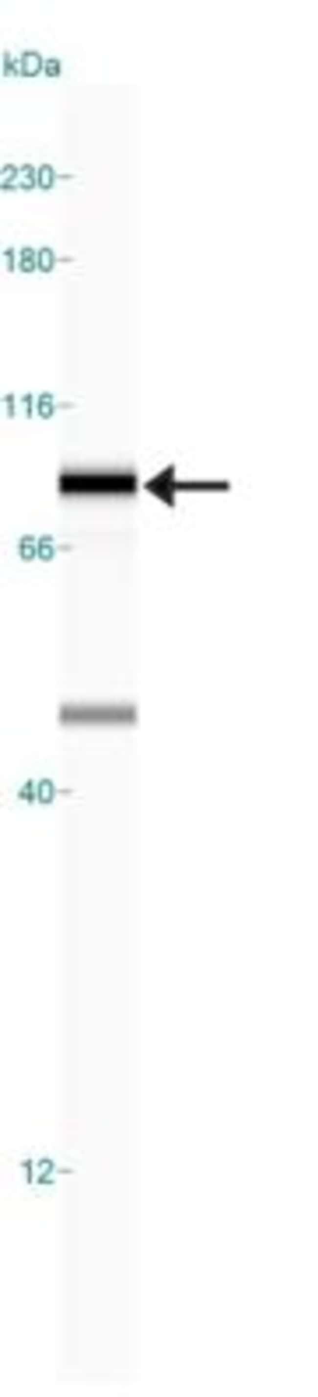 anti-DRP1, Polyclonal, Novus Biologicals:Antibodies:Primary Antibodies