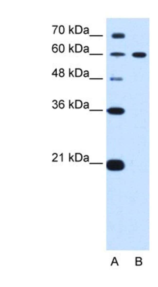 DTX2 Rabbit anti-Human, Polyclonal, Novus Biologicals 20µL; Unlabeled
