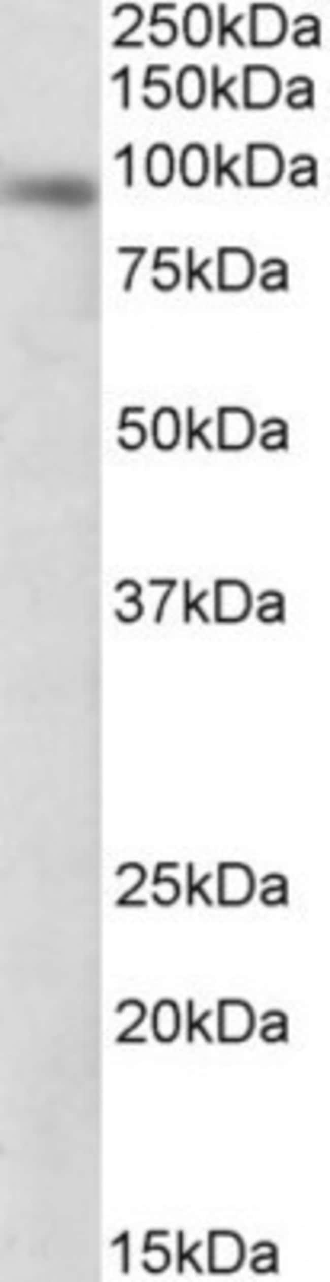 anti-DTX3, Polyclonal, Novus Biologicals 0.1mg; Unlabeled:Life Sciences