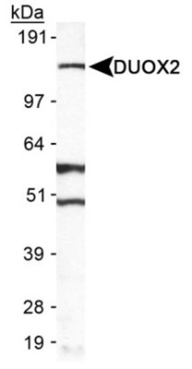 anti-DUOX2, Polyclonal, Novus Biologicals:Antibodies:Primary Antibodies