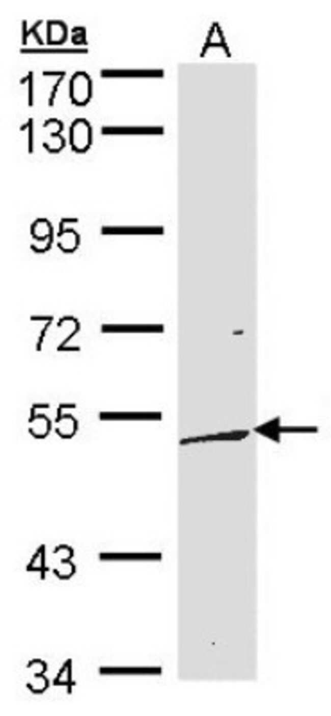 anti-DUSP10, Polyclonal, Novus Biologicals 0.1mg; Unlabeled:Life Sciences