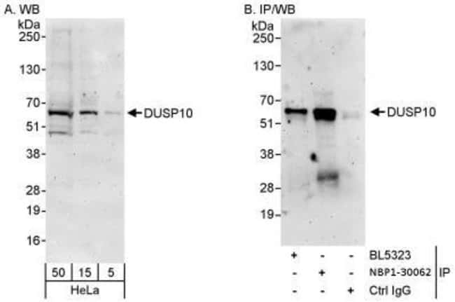 anti-DUSP10, Polyclonal, Novus Biologicals 0.1mL; Unlabeled:Life Sciences
