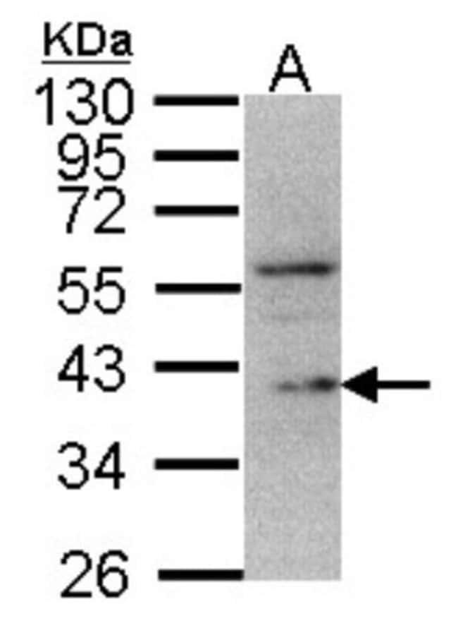 anti-DUSP12, Polyclonal, Novus Biologicals 0.1mg; Unlabeled:Life Sciences