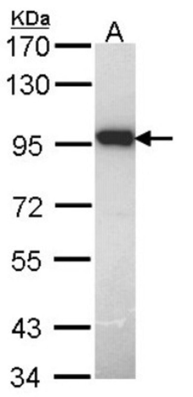 anti-DUSP16, Polyclonal, Novus Biologicals 0.1mL; Unlabeled:Antibodies