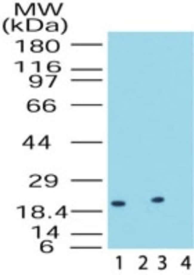 anti-DUSP18, Polyclonal, Novus Biologicals:Antibodies:Primary Antibodies