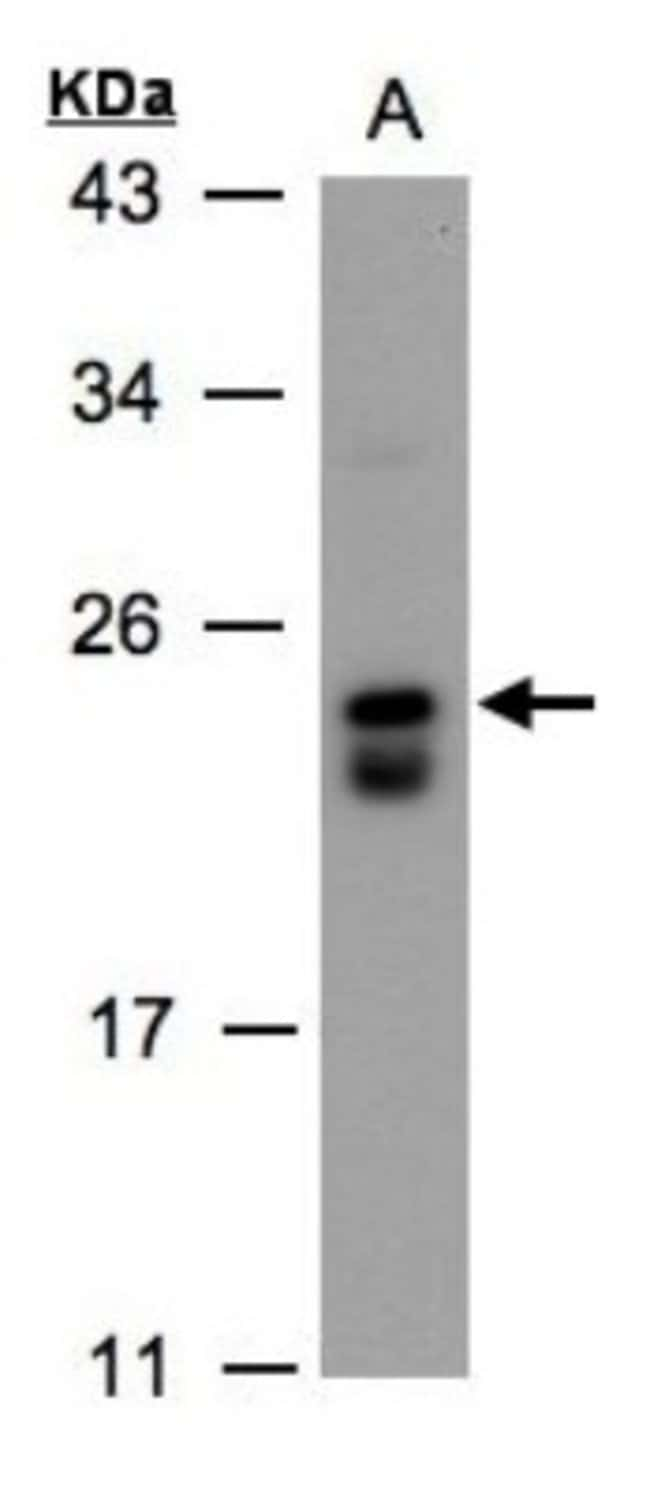 anti-DUSP19, Polyclonal, Novus Biologicals 0.1mg; Unlabeled:Life Sciences