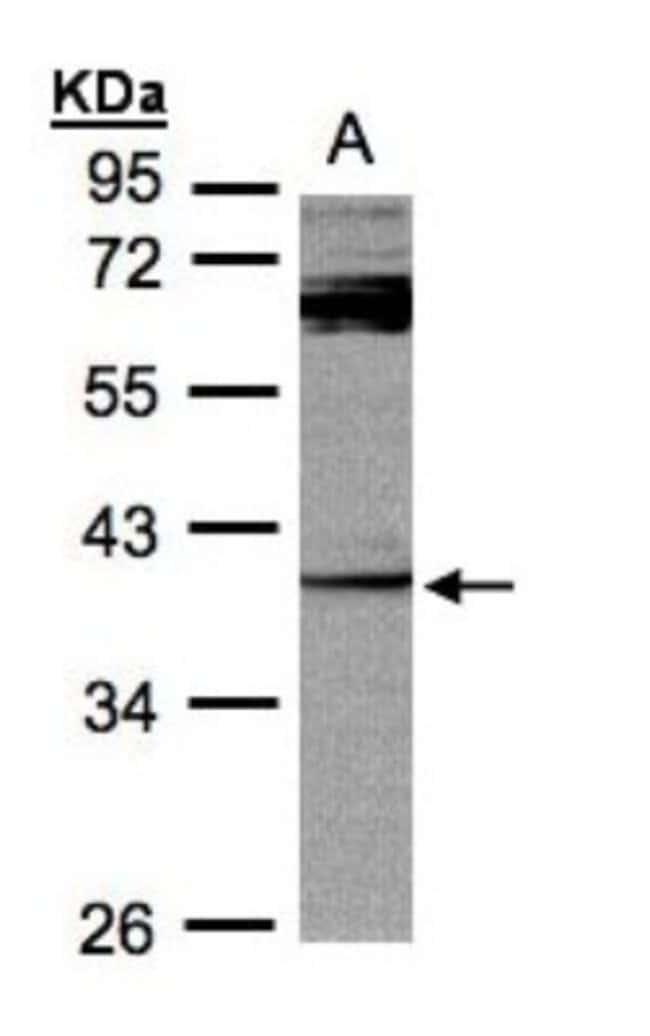 anti-DUSP7, Polyclonal, Novus Biologicals 0.1mg; Unlabeled:Life Sciences