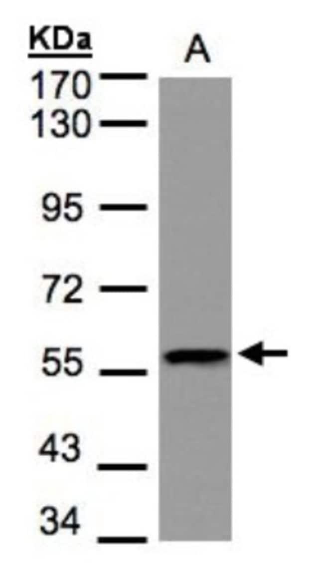 anti-DUSP8, Polyclonal, Novus Biologicals 0.1mL; Unlabeled:Life Sciences