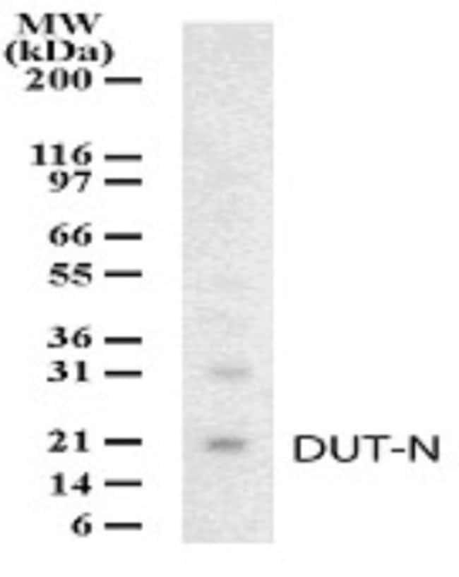 anti-dUTPase, Polyclonal, Novus Biologicals:Antibodies:Primary Antibodies