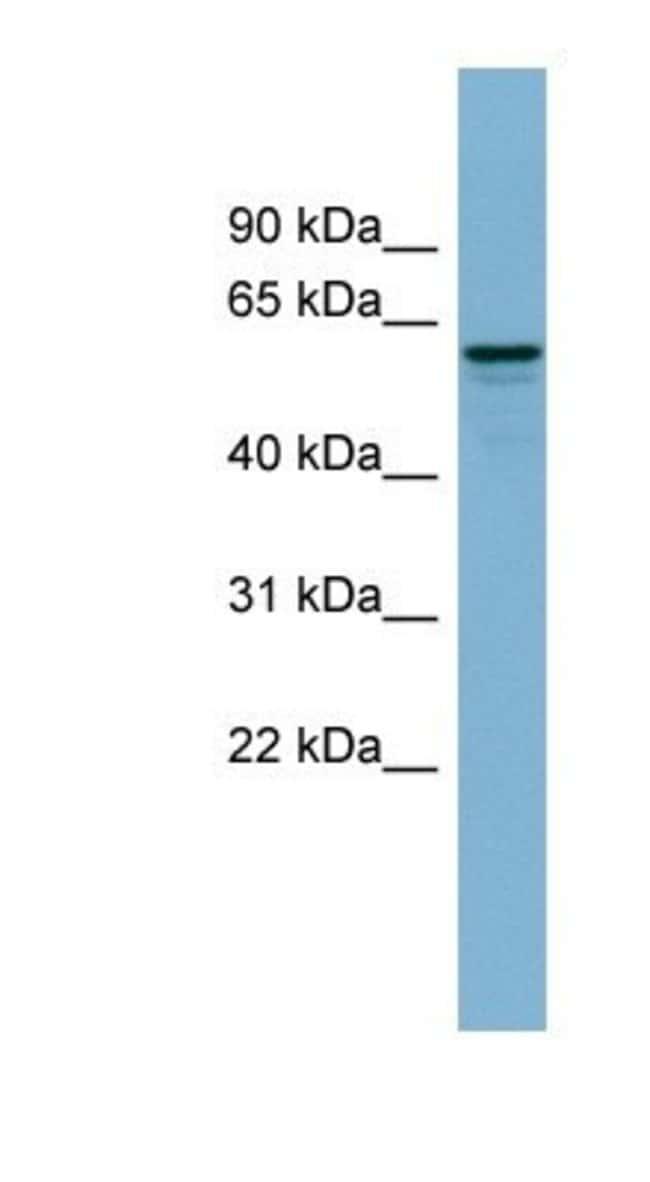 dynactin 4 Rabbit anti-Human, Polyclonal, Novus Biologicals 100µL;