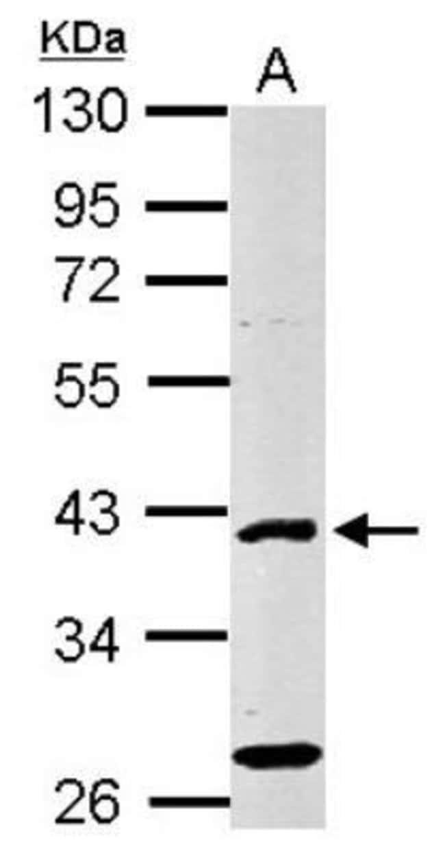 anti-E2F-1, Polyclonal, Novus Biologicals 0.1mg; Unlabeled:Life Sciences
