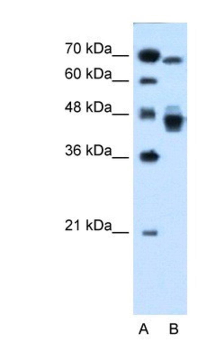 EAR2/NR2F6 Rabbit anti-Human, Polyclonal, Novus Biologicals 100µL;