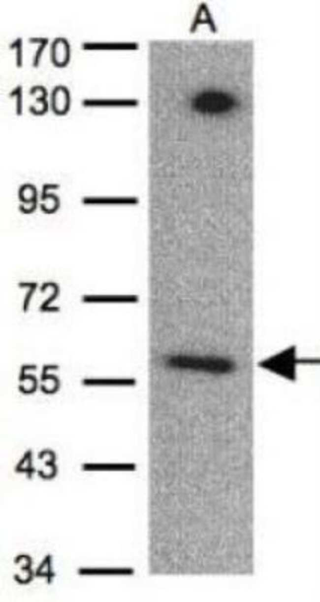 anti-EDNRB/Endothelin R Type B, Polyclonal, Novus Biologicals 0.1mL; Unlabeled:Life