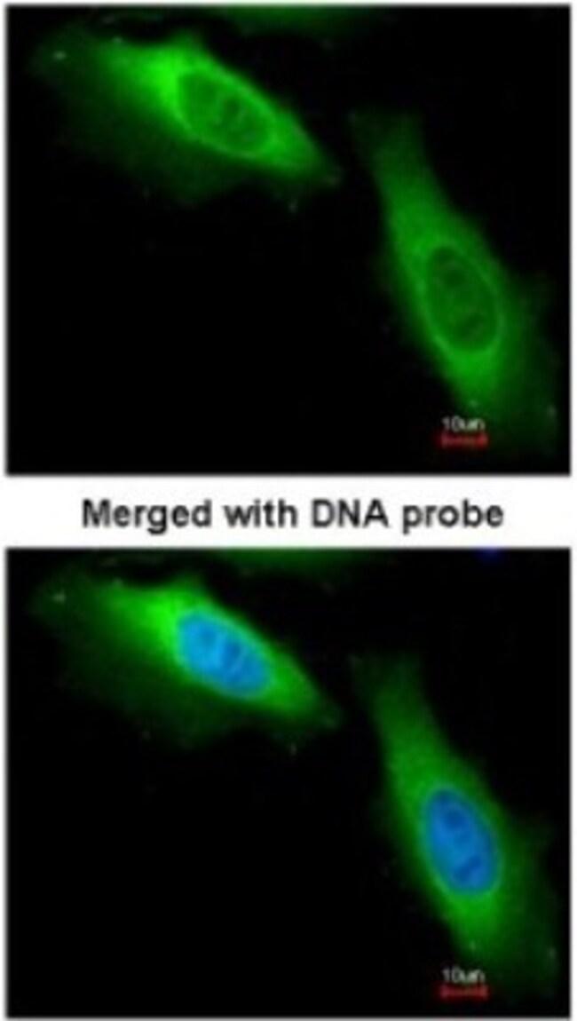 anti-EEF1B2, Polyclonal, Novus Biologicals 0.1mg; Unlabeled:Life Sciences