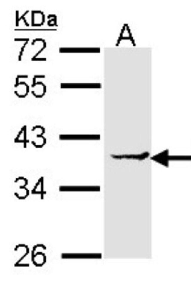 anti-EEF1D, Polyclonal, Novus Biologicals 0.1mL; Unlabeled:Life Sciences