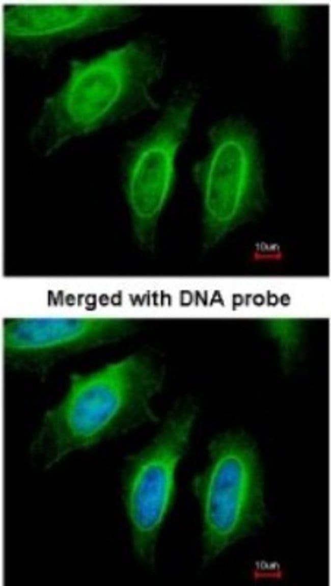 anti-EEN, Polyclonal, Novus Biologicals 0.1mg; Unlabeled:Antibodies