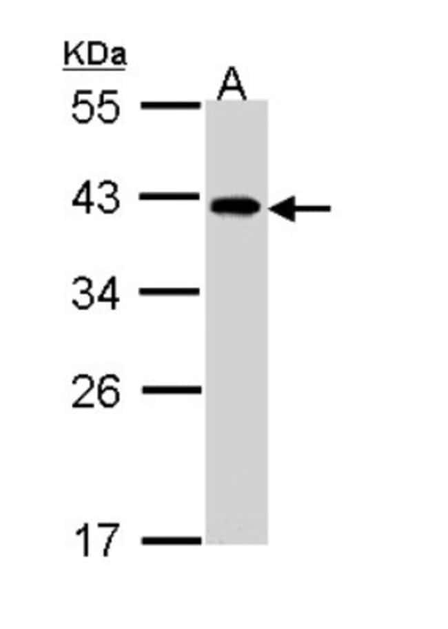 anti-EIF2B2, Polyclonal, Novus Biologicals 0.1mL; Unlabeled:Life Sciences