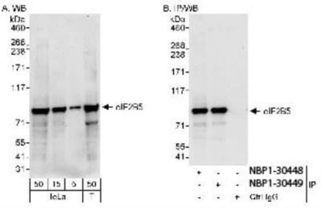 anti-eIF2B epsilon, Polyclonal, Novus Biologicals 0.1mg; Unlabeled:Antibodies