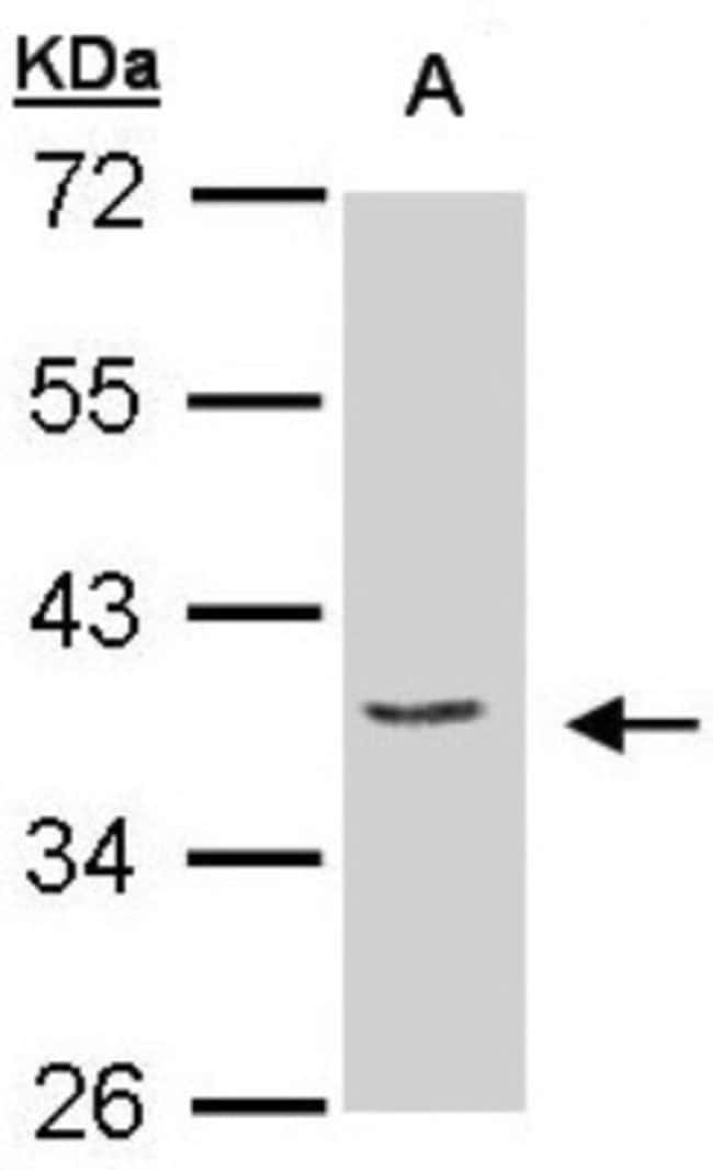 anti-EIF3M, Polyclonal, Novus Biologicals 0.1mg; Unlabeled:Life Sciences