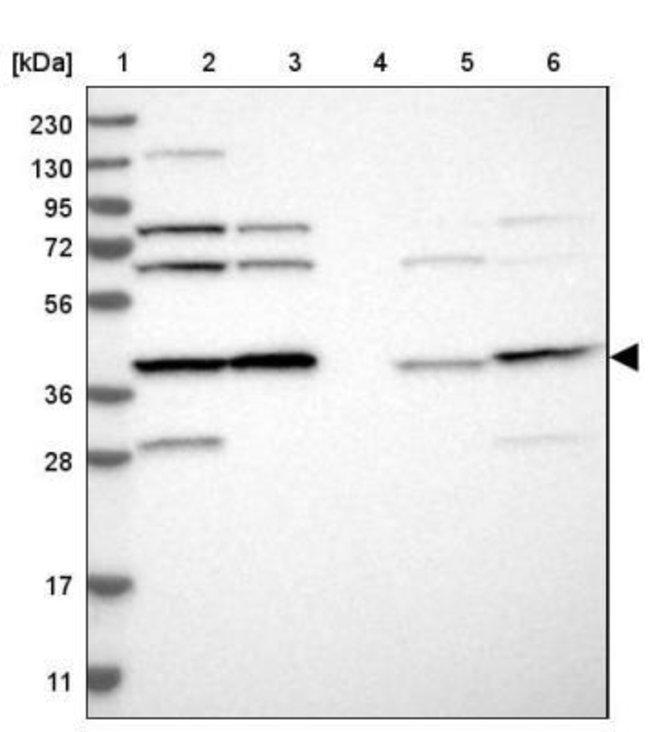 anti-EIF3S3, Polyclonal, Novus Biologicals 0.1mL; Unlabeled:Life Sciences