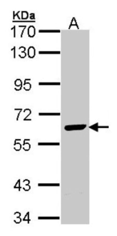 anti-EME1, Polyclonal, Novus Biologicals 0.1mg; Unlabeled:Life Sciences