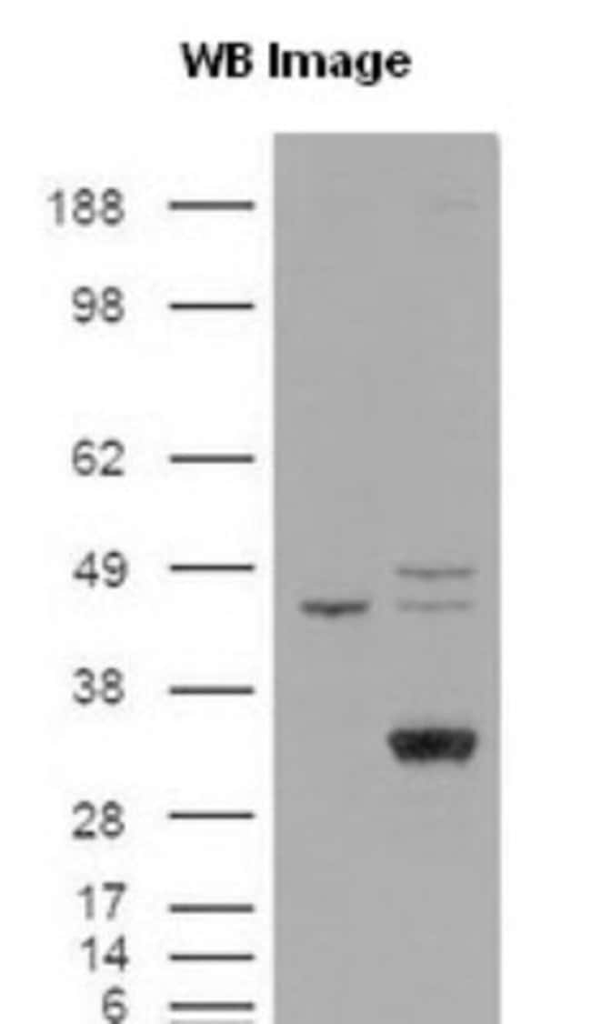 anti-Endothelial Lipase, Polyclonal, Novus Biologicals:Antibodies:Primary