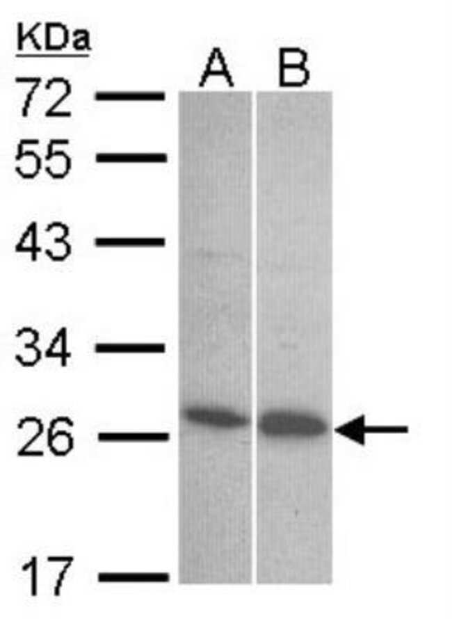 anti-Endothelin-1, Polyclonal, Novus Biologicals 0.1mL; Unlabeled:Life