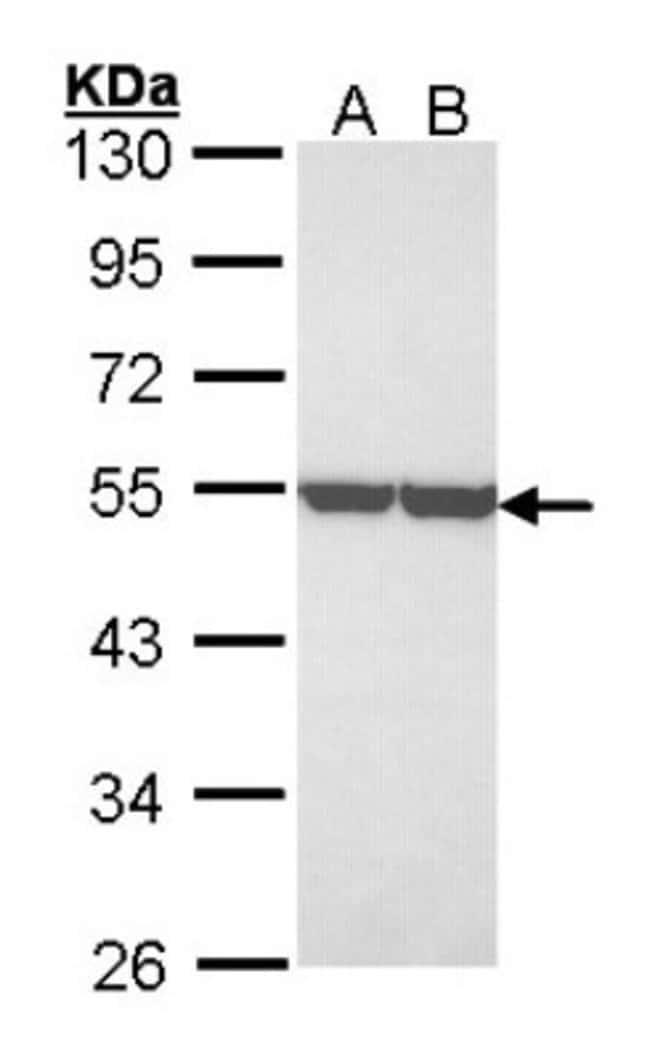 anti-Enolase 1, Polyclonal, Novus Biologicals 0.1mg; Unlabeled:Life Sciences