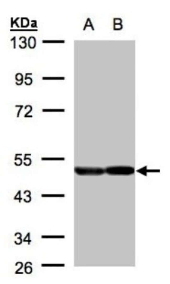 anti-Enolase 1, Polyclonal, Novus Biologicals 0.1mL; Unlabeled:Life Sciences